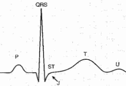 [ Normal electrocardiogram ]